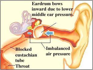Il tubo di Eustachio si connette