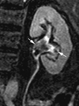 la pelvi renale è ingrandita nel feto