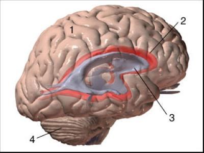 Navzven zamenjava hidrocefalusa