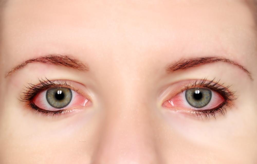 objawy alergii oka