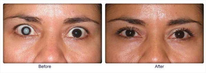 симптоми на очите на катаракта