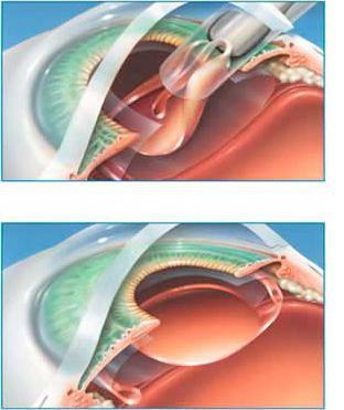 разходи за операция на катаракта на очите