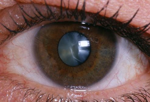 очна катаракта след операция