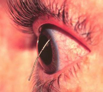 zdravljenje poškodb oči