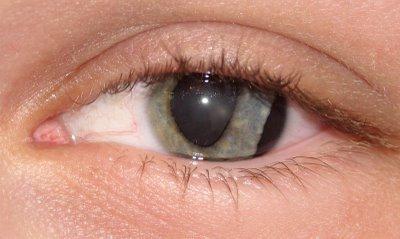 prva pomoč pri poškodbah oči