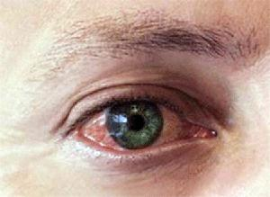rdeče oči in srbečica