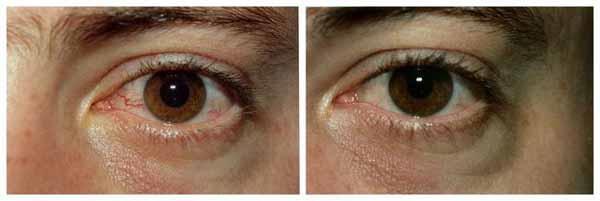 zdravljenje rdečih oči