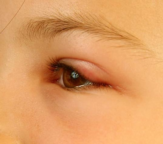 oční opuchová léčba