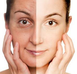 peeling facciale prima e dopo