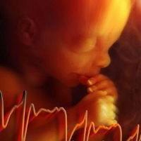 fetální srdeční tep