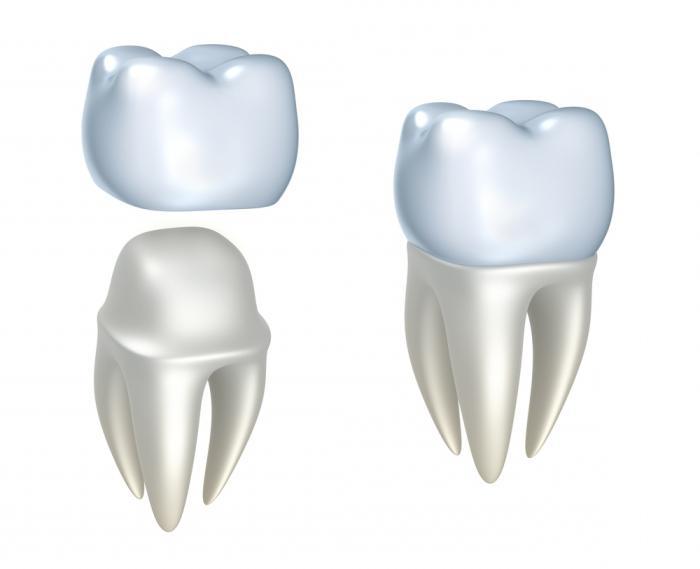 korony dentystyczne