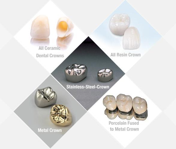 rodzaje koron zębowych