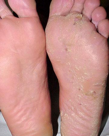 simptomi i liječenje gljivica stopala