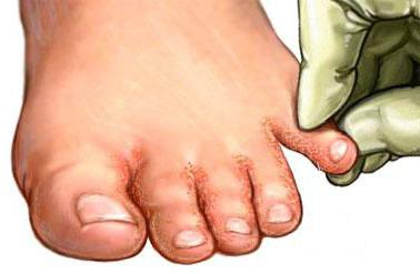 simptomi gljivica i noktiju