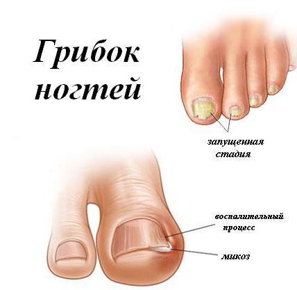 simptom gljivice stopala i noktiju