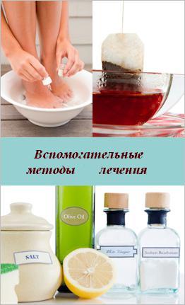 simptomi mirisa gljivica stopala