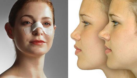 људски облик носа