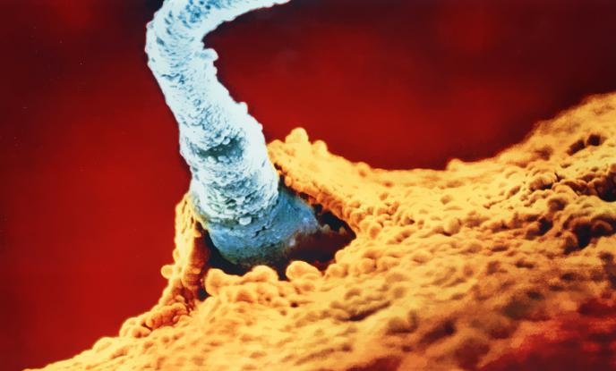La struttura della foto dello sperma