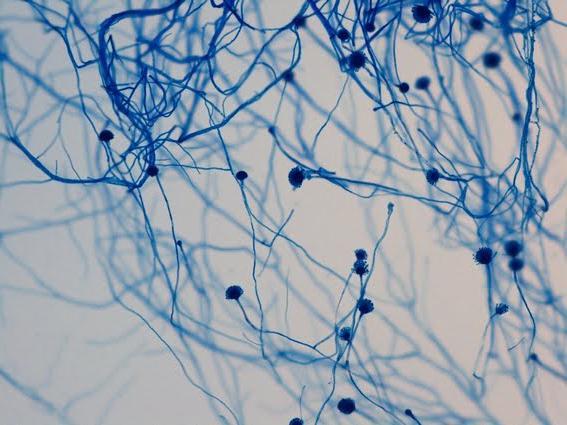 gljivične infekcije