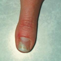 grzyb na rękach
