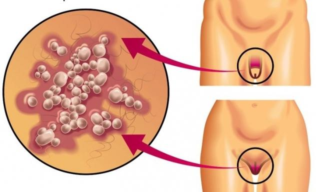 kako izgleda genitalni herpes