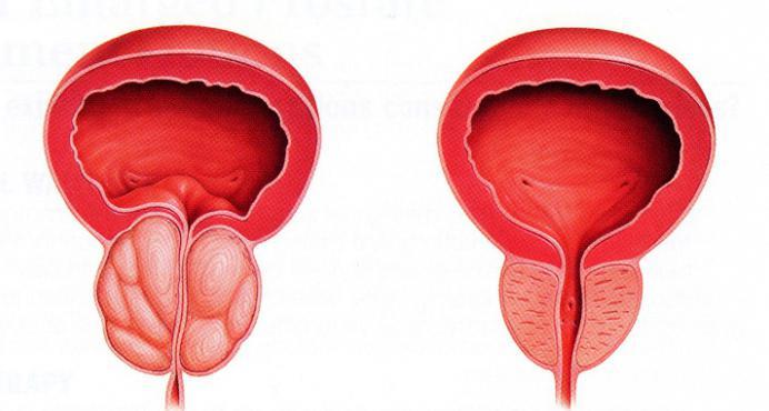 bolesti genitourinarnog sustava u muškaraca