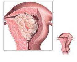 cistična hiperplazija endometrija