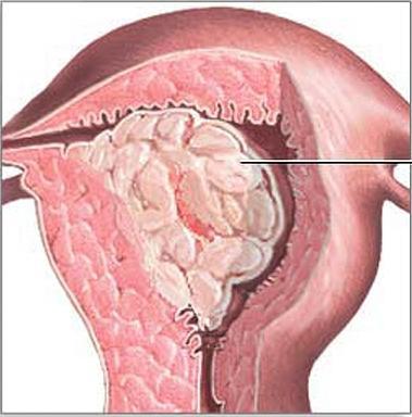 ендометриална жлезиста хиперплазия