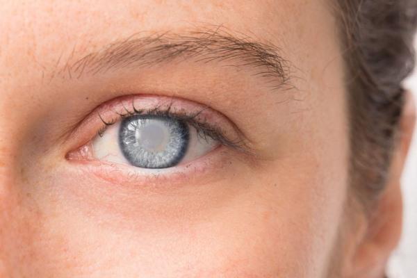 Glaukomové oči