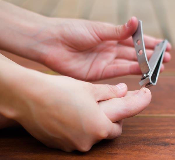 trattamento delle unghie incarnite a casa