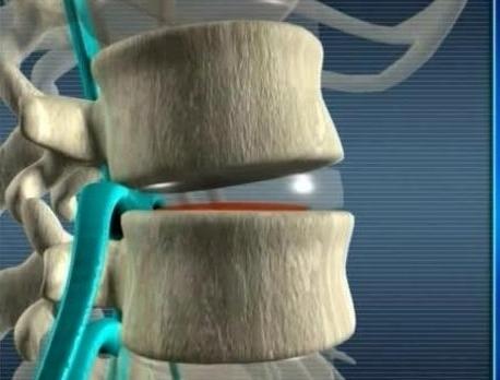 nervo pizzicato nella parte posteriore