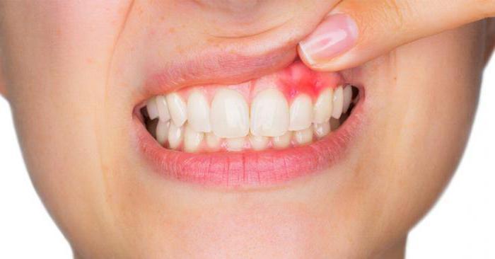 gomma irritata dopo l'estrazione del dente