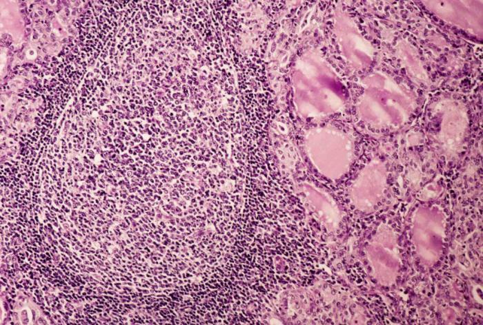 автоимунен тиреоидит хашимото заболяване