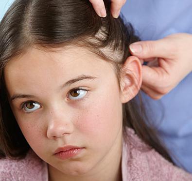 како се преносе уши