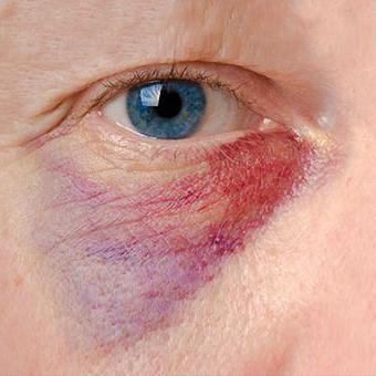 zdravljenje hematoma