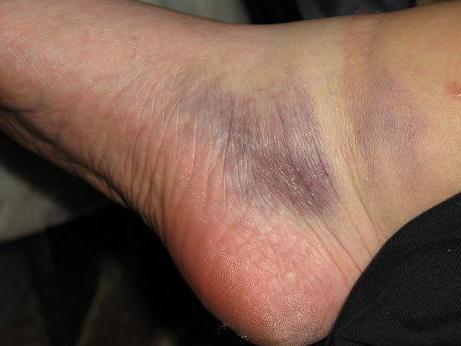zdravljenje hematoma nog