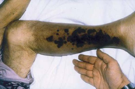 hemolitička anemija