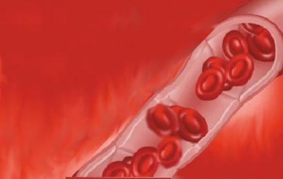 simptomi hemolitičke anemije