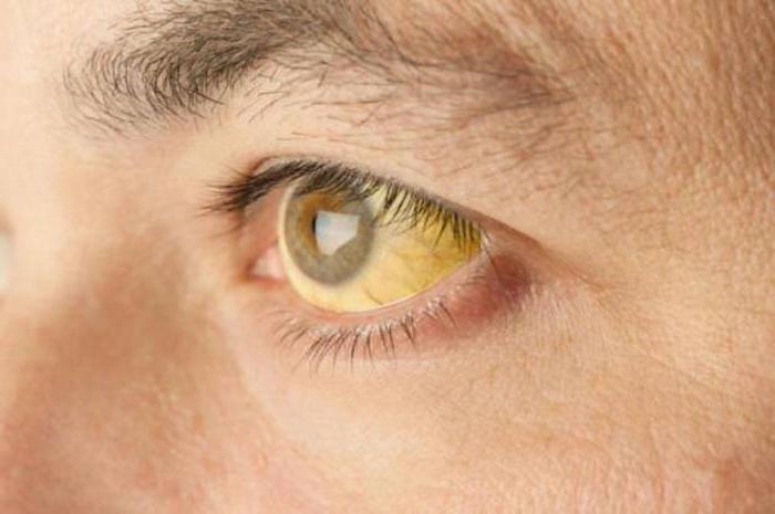 malattia da epatite tossica
