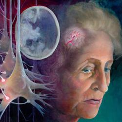 zdravila za izboljšanje možganske cirkulacije