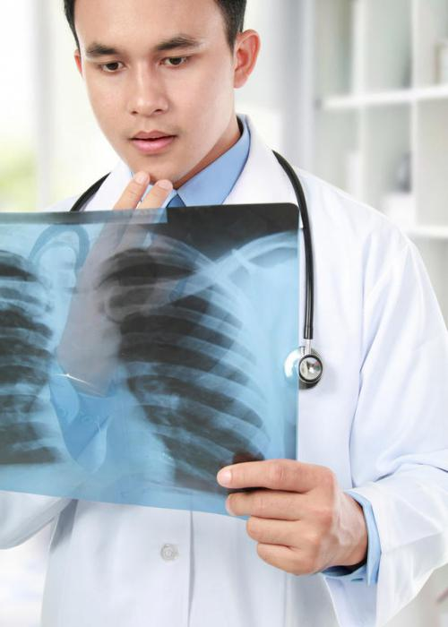 rendgenski snimak prsnog koša