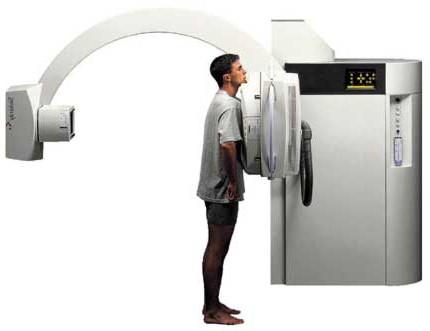 rendgenski snimak prsnog koša koji pokazuje