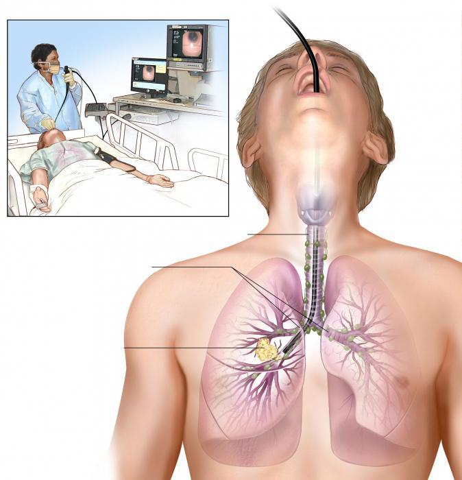 Broncoscopia dei polmoni