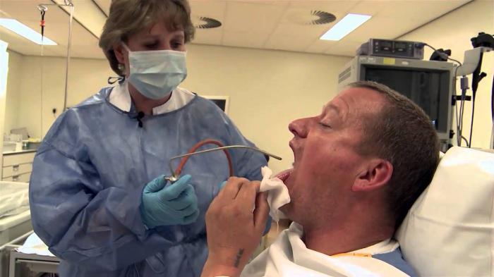 Broncoscopia per il cancro del polmone