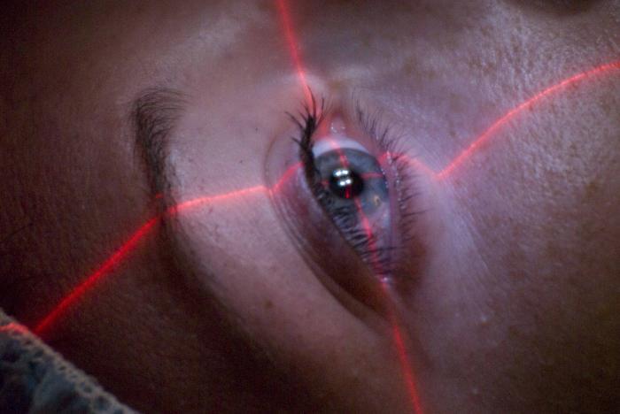 Chirurgia dell'occhio