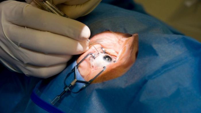 Chirurgia dell'occhio del laser