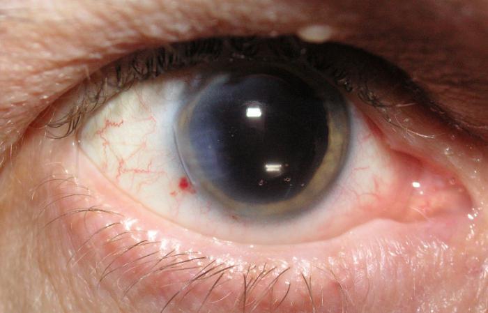 Chirurgia dell'occhio della cataratta