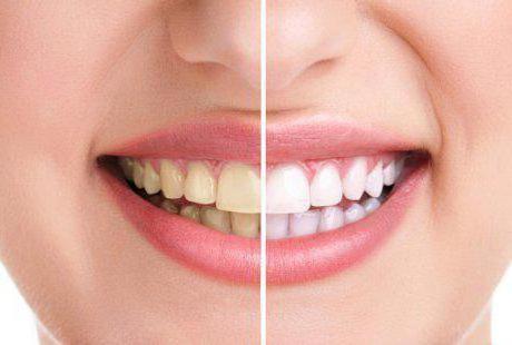 како се бринути за зубе