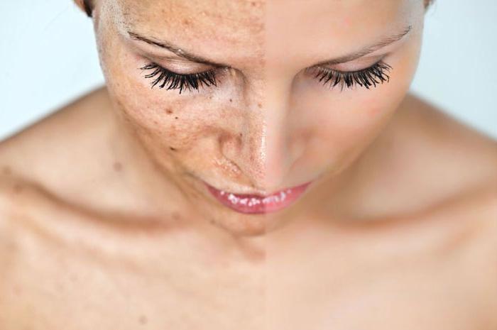 jak se zbavit věkových skvrn na obličeji