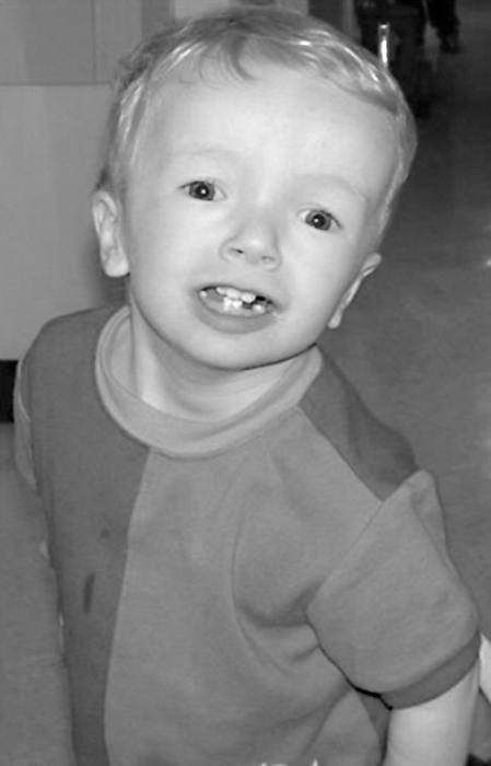 Cerebrastenični sindrom pri otrocih